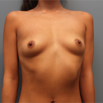 24 year old had Breast Augmentation using 415cc silicone implants before 3544436