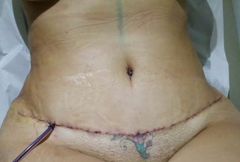35-44 year old woman treated with Tummy Tuck after 3187209
