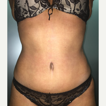 45-54 year old woman treated with Tummy Tuck after 3175234