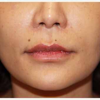 35-44 year old woman treated with Lip Augmentation before 3578320