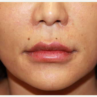35-44 year old woman treated with Lip Augmentation after 3578320