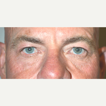60 year old male, who underwent Male Upper Blepharoplasty before 3447041