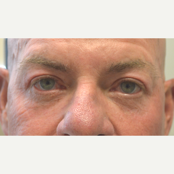 60 year old male, who underwent Male Upper Blepharoplasty after 3447041
