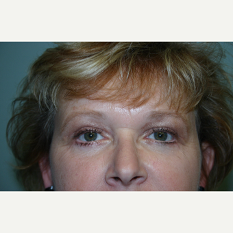 Upper and Lower Eyelid Surgery 2 Months Post-op after 3032902