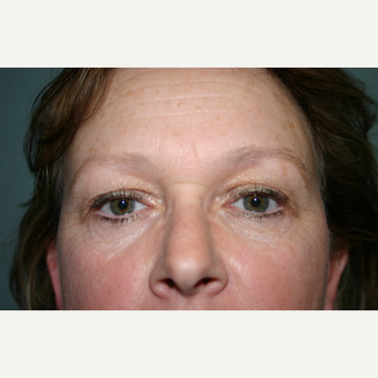 Upper and Lower Eyelid Surgery 2 Months Post-op before 3032902