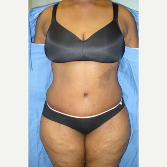 36 year old woman treated with Tummy Tuck after 1819718