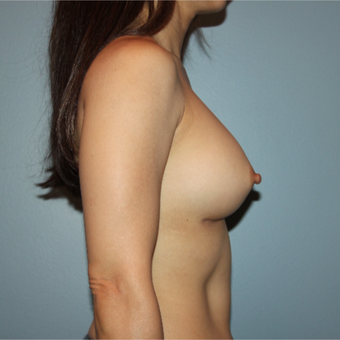 45 years old first Breast Augmentation after 3389757