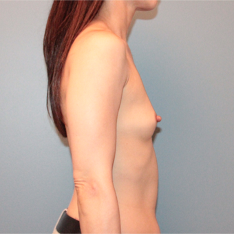 45 years old first Breast Augmentation before 3389757