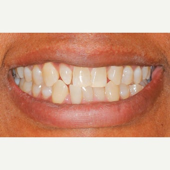65-74 year old woman treated with Porcelain Veneers