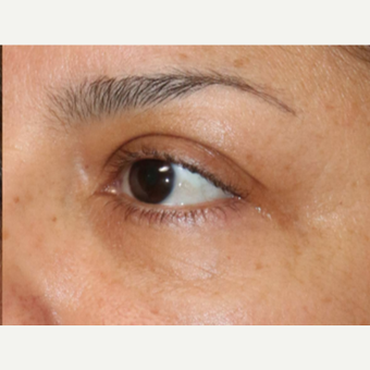 25-34 year old woman treated with Fraxel Laser for wrinkles around the eyes after 2910030