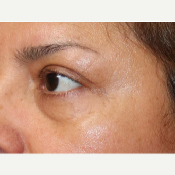 25-34 year old woman treated with Fraxel Laser for wrinkles around the eyes before 2910030