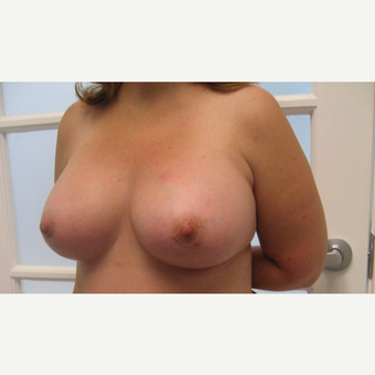 25-34 year old woman treated with Breast Augmentation after 3201125