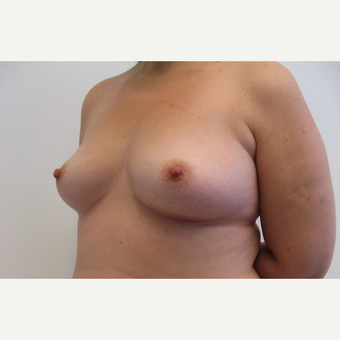 25-34 year old woman treated with Breast Augmentation before 3201125