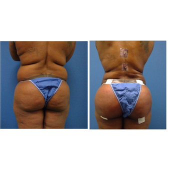 25-34 year old woman treated with Brazilian Butt Lift Brazilian Butt Lift