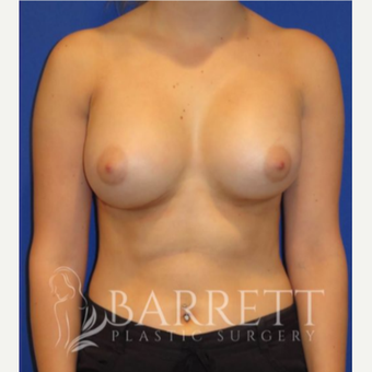 18-24 year old woman treated with Breast Implant Revision after 3657358