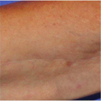 Arm lift scar before and after treatment with embrace® after 2864572