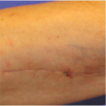 Arm lift scar before and after treatment with embrace® before 2864572