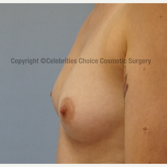 25-34 year old woman treated with Breast Augmentation before 3326229