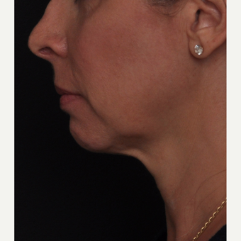 45-54 year old woman treated with Liquid Facelift before 2842077