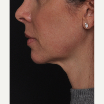 45-54 year old woman treated with Liquid Facelift after 2842077