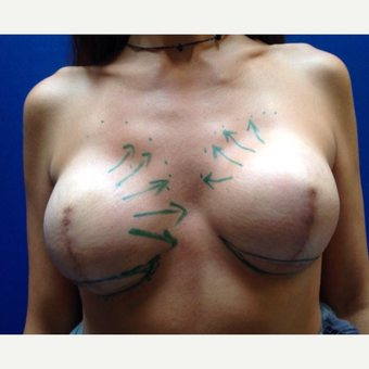 35-44 year old woman treated with Breast Reconstruction before 3018895