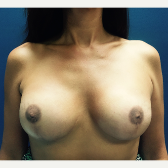 35-44 year old woman treated with Breast Reconstruction after 3018895