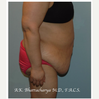 45-54 year old woman treated with Tummy Tuck before 3609940