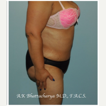 45-54 year old woman treated with Tummy Tuck after 3609940