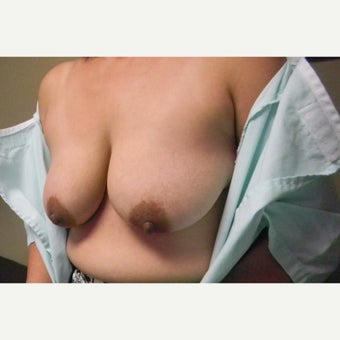 45-54 year old woman treated with Breast Lift 1584111