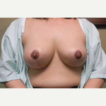 45-54 year old woman treated with Breast Lift after 1584111