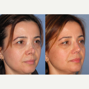 35-44 year old woman treated with Revision Rhinoplasty after 3521524