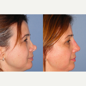 35-44 year old woman treated with Revision Rhinoplasty before 3521524