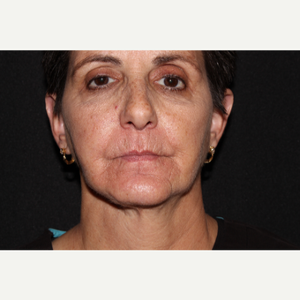 55-64 year old woman treated with Volbella before 3738662