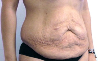 33 year old woman treated with Tummy Tuck before 2655622