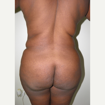 35-44 year old woman treated with Brazilian Butt Lift before 3103826