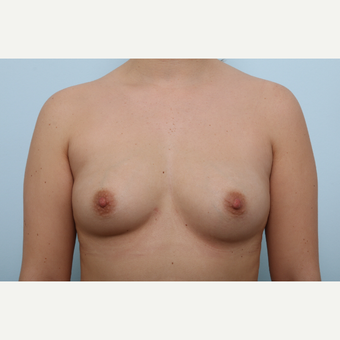Breast Augmentation before 3425383