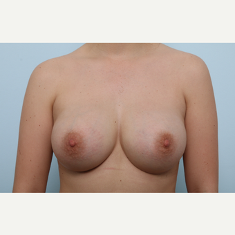 Breast Augmentation after 3425383