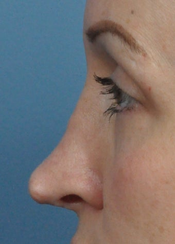 Patient treated with Rhinoplasty before 1223138