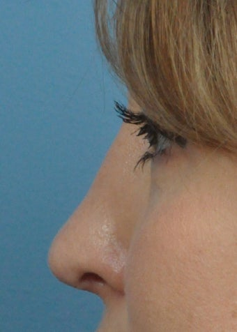 Patient treated with Rhinoplasty after 1223138