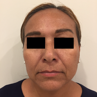 45-54 year old woman treated with Facelift before 3776885