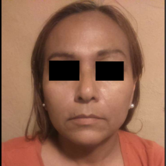 45-54 year old woman treated with Facelift after 3776885