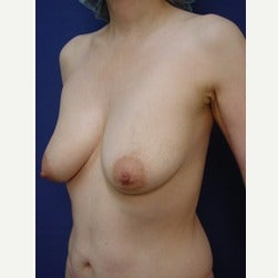 45-54 year old woman treated with Breast Lift with Implants before 2049820