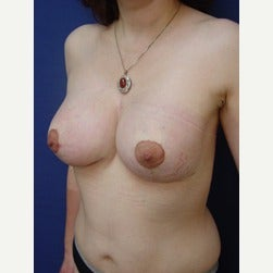 45-54 year old woman treated with Breast Lift with Implants after 2049820