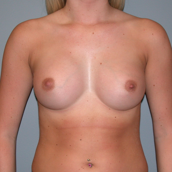 25-34 year old woman treated with Breast Augmentation after 3455302