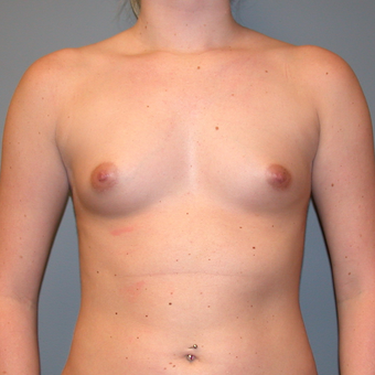 25-34 year old woman treated with Breast Augmentation before 3455302