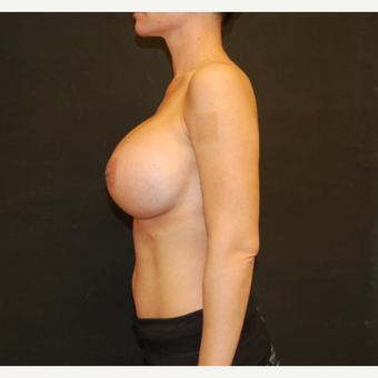 35-44 year old woman treated with Breast Implant Revision after 3810175