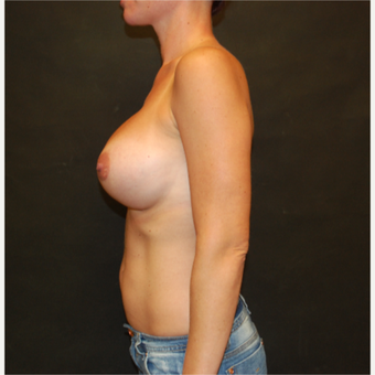 35-44 year old woman treated with Breast Implant Revision before 3810175