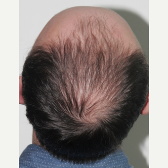 35-44 year old man treated with FUE Hair Transplant before 3522652
