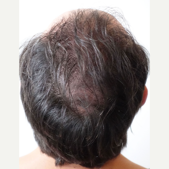 35-44 year old man treated with FUE Hair Transplant after 3522652