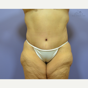 45-54 year old woman treated with Liposuction after 3421412